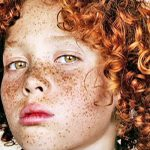He Was Teased Because of His Spots. Then a Photographer Sees This In His Face.