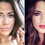 A Model Who Hid Her Skin Condition for 10 Years Is Going Viral With a Powerful Post About Beauty.