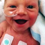 A Premature Baby With Dazzling Smile Gives Hope to Worried Parents.