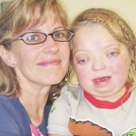 Daughter is born with rare bone condition. 17 years later, she says her looks don't define her.